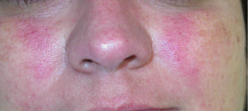 Top 5 Triggers of Rosacea to Avoid