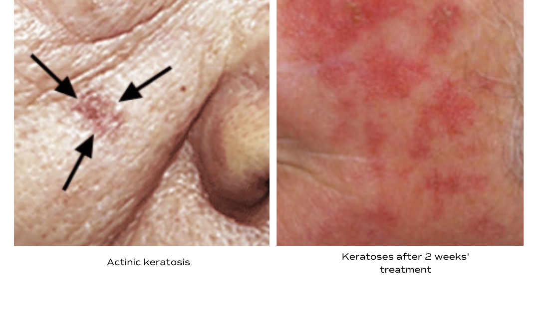 Treatment Options for Actinic Keratosis